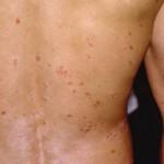 Những chứng bệnh ngoài da khi thời tiết thay đổi