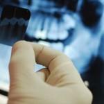 Quy trình của một ca niềng răng mắc cài 3M UGSL