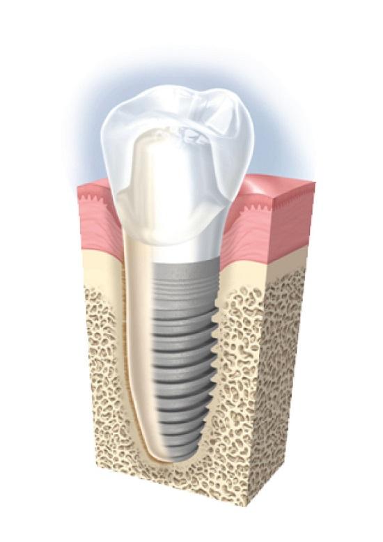 Vì sao trồng răng Implant lại có giá thành cao?