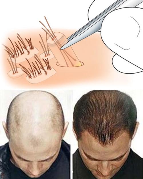 Điều trị hói đầu bằng phương pháp cấy tóc 2