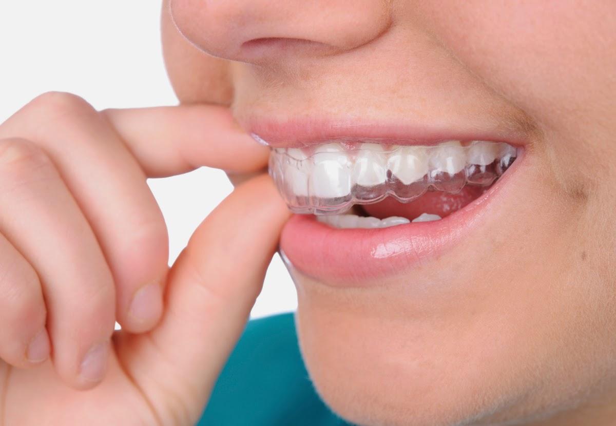 Ưu và nhược điểm của máng tẩy trắng răng