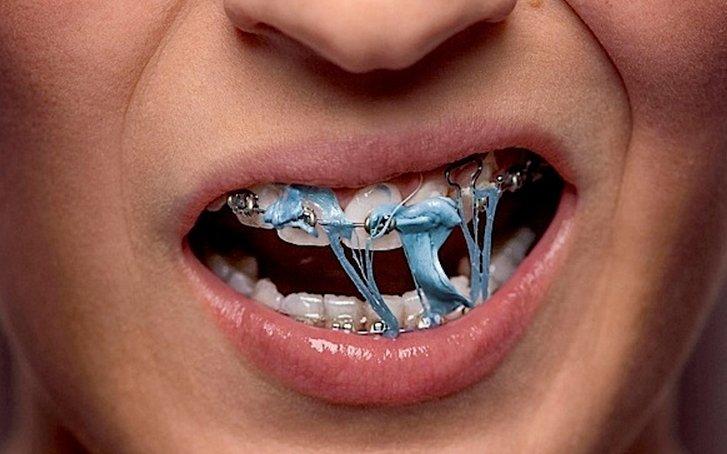 Những điều cần lưu ý khi niềng răng bạn nên biết
