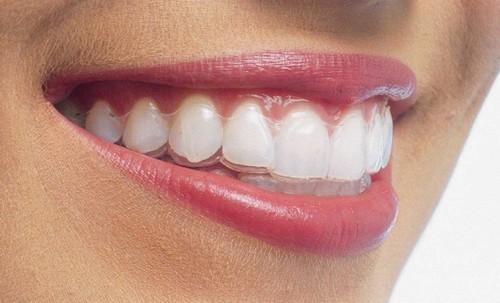 Niềng răng tháo lắp mang lại hiệu quả cao