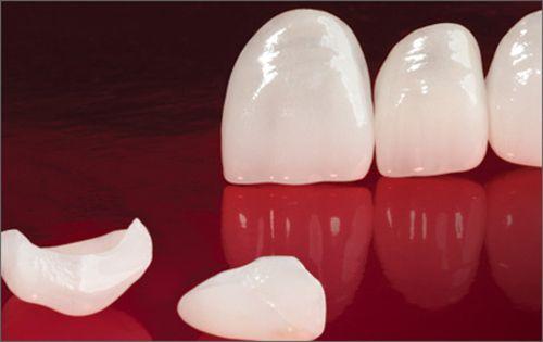 Sứ Veneer phục hồi thẩm mỹ bảo tồn răng thật