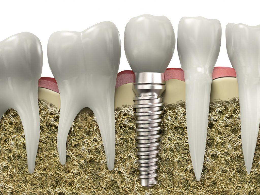 Chỉ điểm cấy ghép Implant ở đâu tốt cho mọi nhà? 1