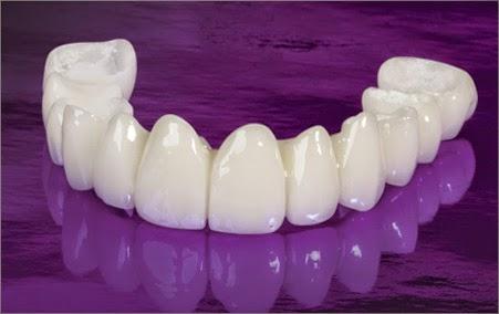Cách nhanh nhất để biết bọc răng sứ giá bao nhiêu tiền 2