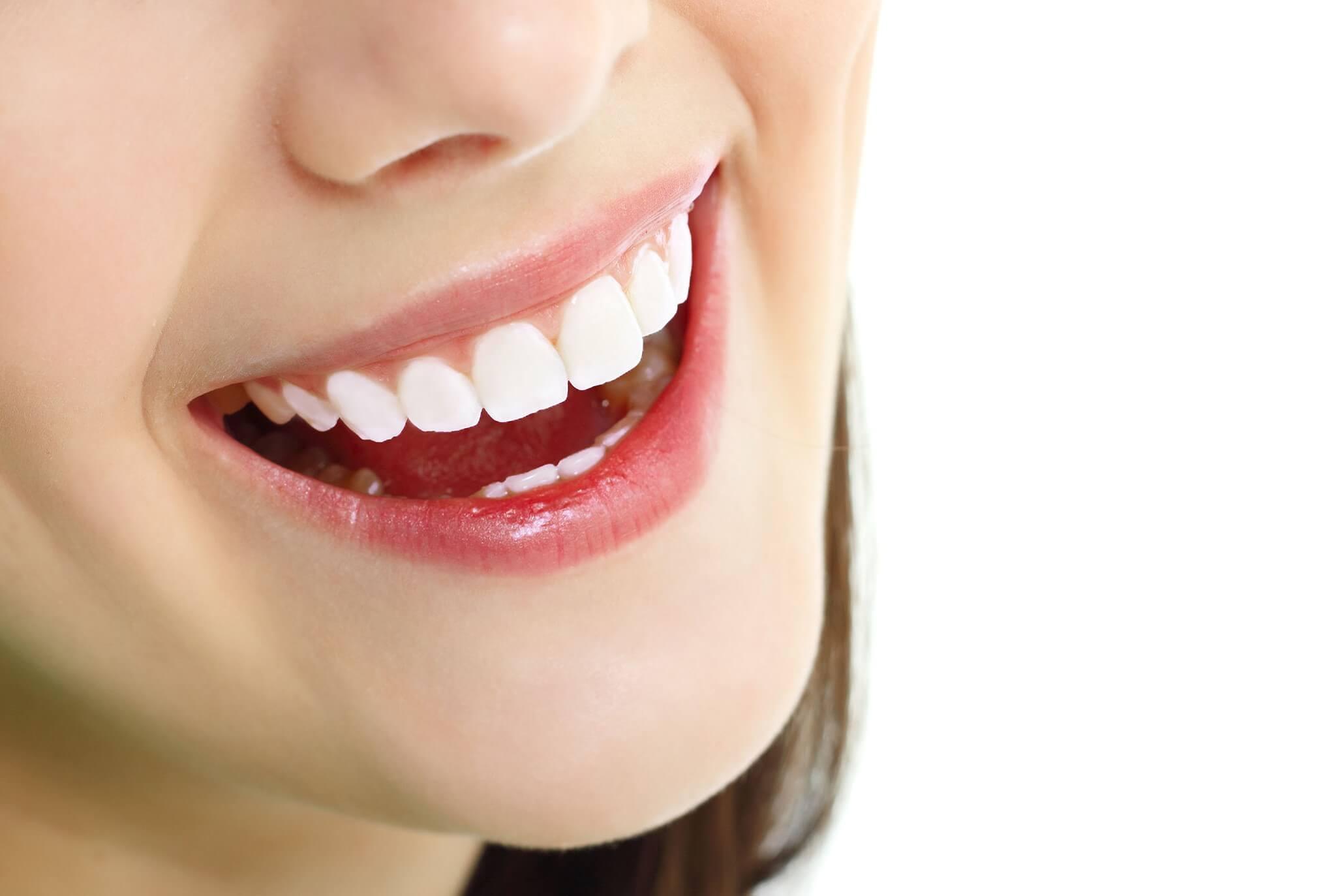 Bọc răng sứ cho răng bị thưa đẹp tự nhiên tại nha khoa 1