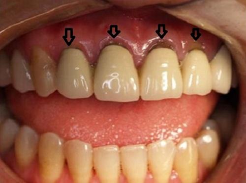 Bọc răng sứ có bị hôi miệng không - Nguyên nhân và khắc phục 1
