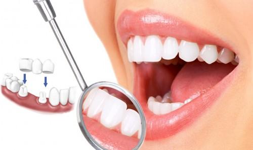 3 lý do sau để biết - Có nên bọc răng sứ thẩm mỹ không 2