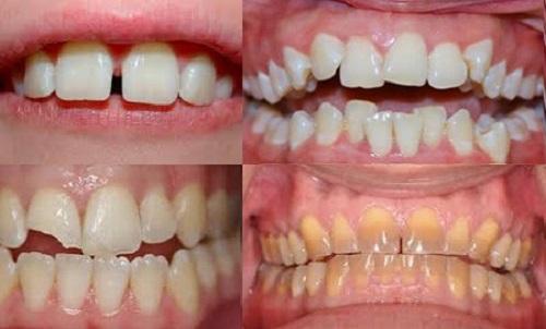 Bọc răng sứ như thế nào? 2