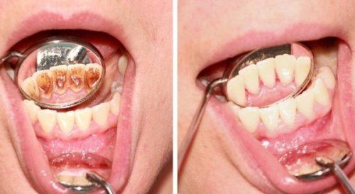 Cạo vôi răng có tốt không? 1