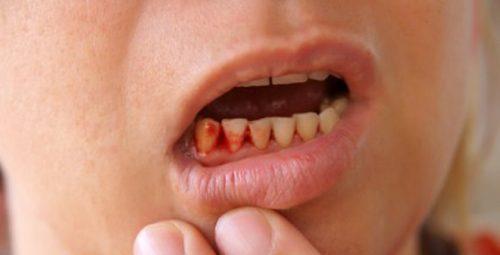 Chảy máu nướu răng ở trẻ em có nguy hiểm không? 1