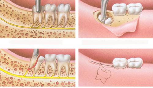 Nhổ răng khôn có ảnh hưởng gì không? 3