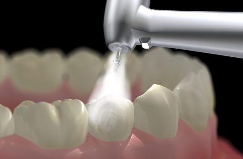 Cạo vôi răng mất bao lâu? 2
