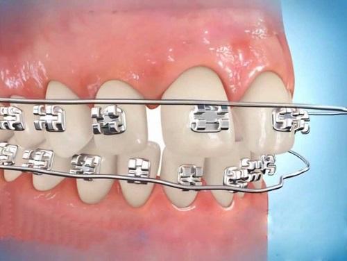 Niềng răng có hết hô không bác sĩ 1