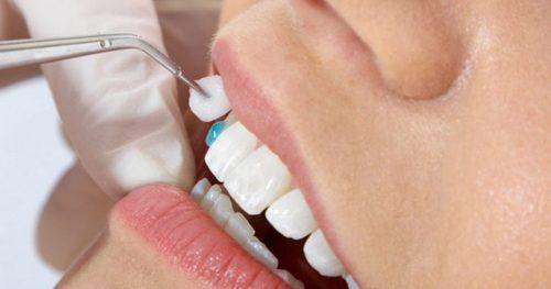 Bọc răng sứ ở đâu tốt hà nội?