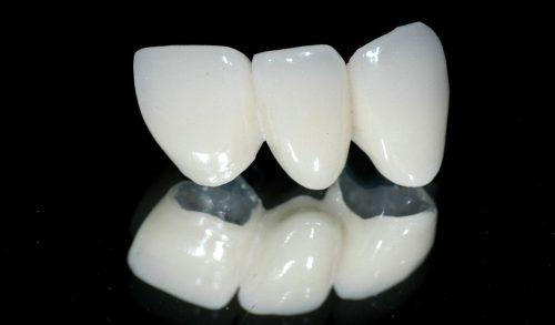 Bọc răng sứ titan có tốt không? Tôi cần tư vấn 1