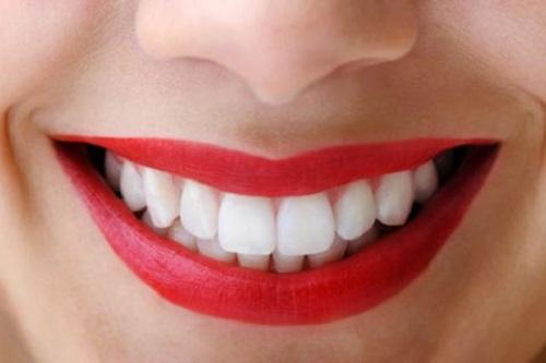 Bọc răng sứ zirconia vì sao được nhiều người lựa chọn?