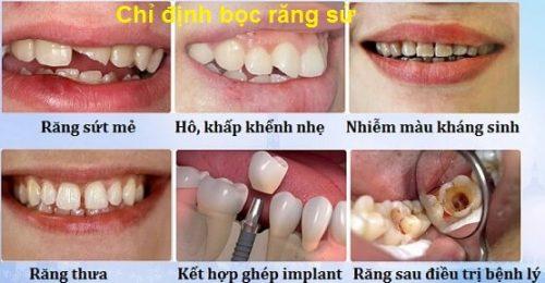 Bọc sứ răng cửa giá bao nhiêu tại TP Hồ Chí Minh? 2