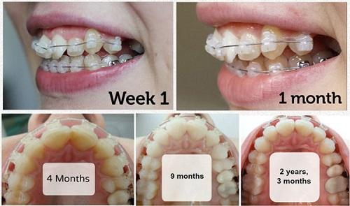 Tìm hiểu niềng răng mắc cài sứ giá bao nhiêu 2