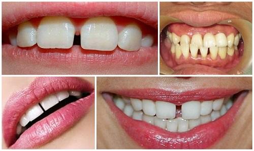 Niềng răng thẩm mỹ mang lại nụ cười tự tin cho bạn 3