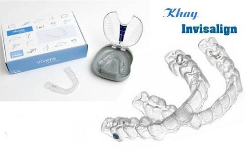 Niềng răng thẩm mỹ bằng nhựa - Các thông tin cần biết 2