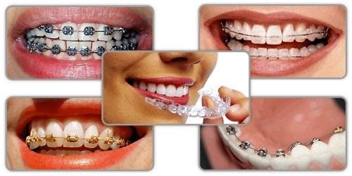 Niềng răng thẩm mỹ bằng nhựa - Các thông tin cần biết 4