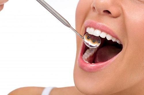 Niềng răng mặt trong mất bao lâu là hoàn chỉnh? 2