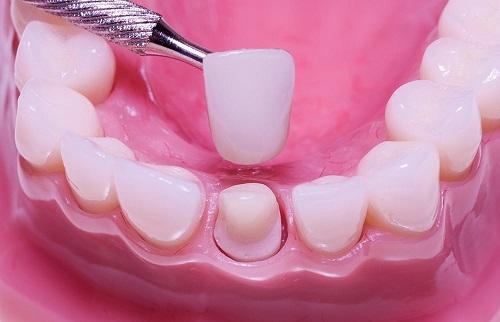 Bọc răng sứ kim loại có bền không? Kéo dài bao lâu? 2