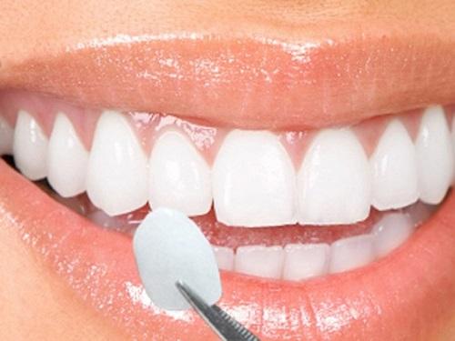 Dán răng sứ có bền không? Duy trì tốt nhất bao lâu? 2
