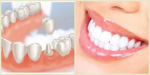 Làm răng sứ thẩm mỹ ở đâu đẹp và an toàn nhất? 1