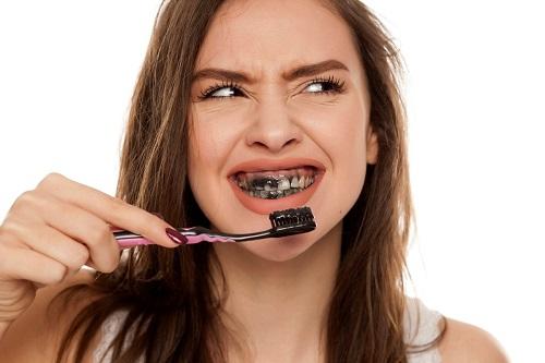 Tẩy trắng răng bằng than hoạt tính hiệu quả bất ngờ 3