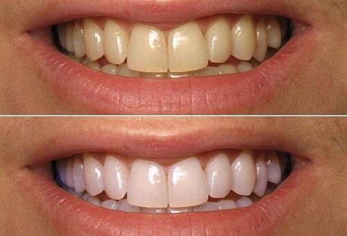 Tẩy trắng răng trong 1 tuần có những cách nào? 3