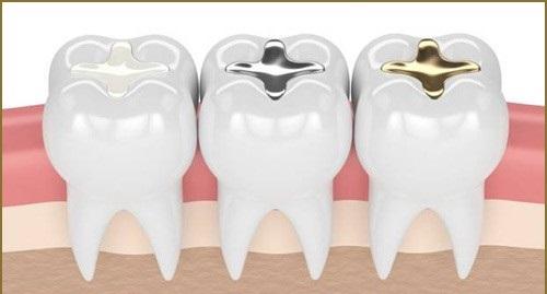 Trám răng giá bao nhiêu tiền là thực hiện được? 3