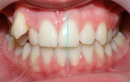 Niềng răng lệch nhân trung - Tìm hiểu về trường hợp này 1