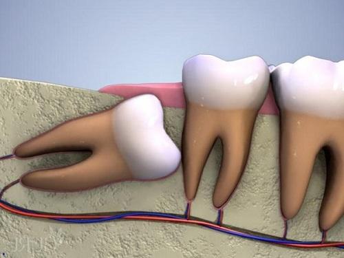 Nhổ 2 răng khôn hàm dưới cần lưu ý điều gì? 2