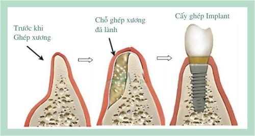 Tìm hiểu ghép xương hàm trong cấy ghép implant 2